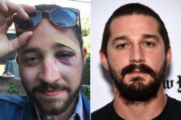 Житель Нью-Йорка был избит из-за схожести с актером Шайей ЛаБафом