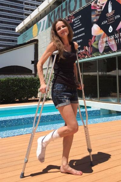 Наталья Лесниковская сломала ногу на «Кинотавре»