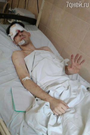 18-летний сын звезды шансона попал в автокатастрофу