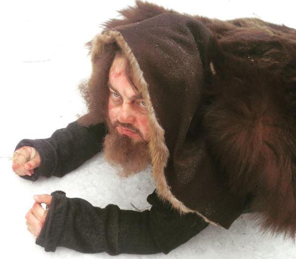 Российского Леонардо ДиКаприо покусал наркозависимый