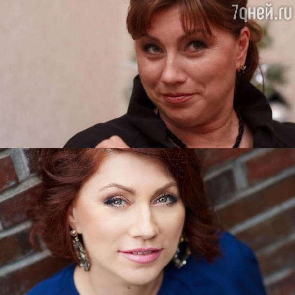 Роза Сябитова показала результат пластических операций