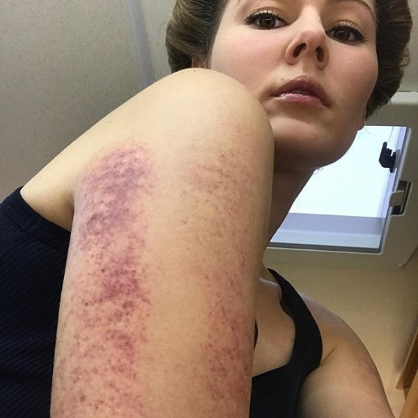 Мария Кожевникова шокировала подписчиков травмой руки