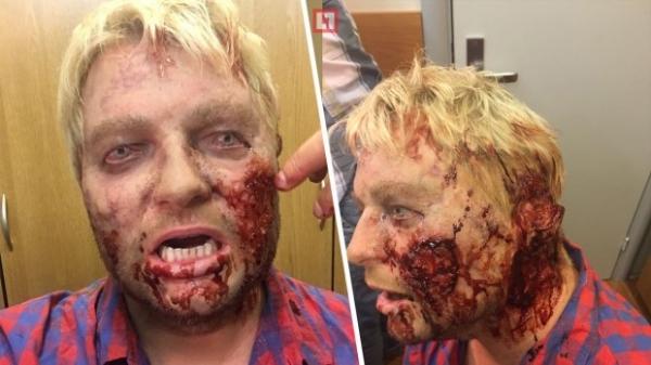 Николай Басков перевоплотился в кровавого зомби