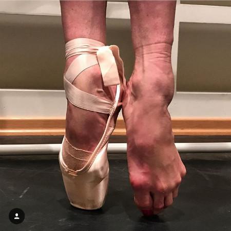 Волочкова показала израненные репетициями ноги