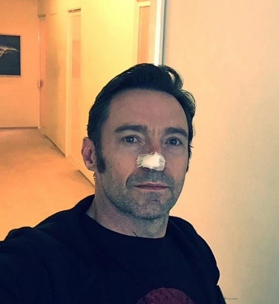 Хью Джекман снова борется с раком кожи