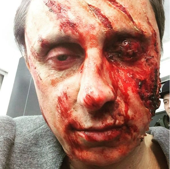 Вадим Галыгин удивил фотографией с обезображенным лицом