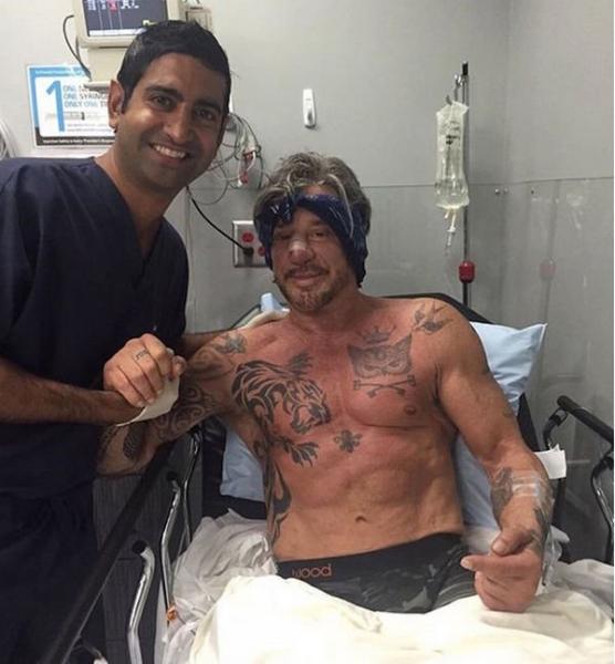 Микки Рурк снова лег под нож пластического хирурга