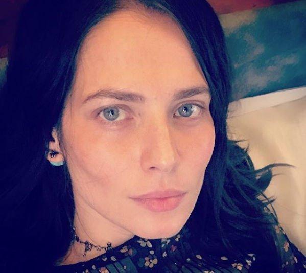 Юлия Снигирь продемонстрировала результат похода к косметологу