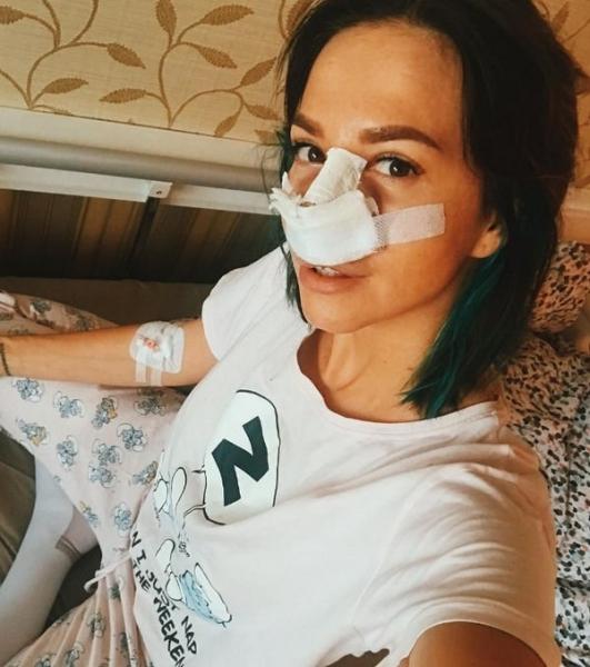 Натали Неведрова сделала ринопластику