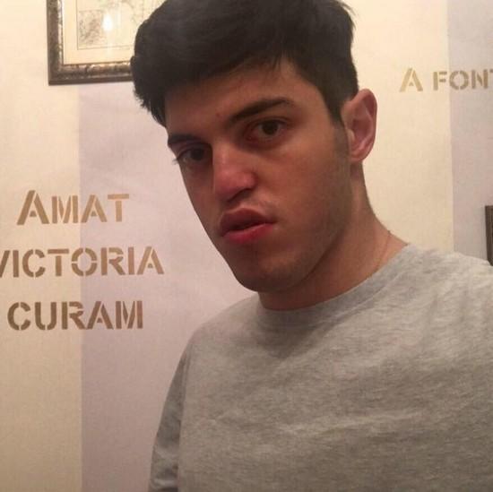 Сын Марка Розовского госпитализирован с тяжелой травмой