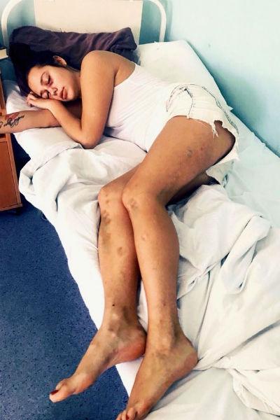 Экс-участницу «ДОМа-2» жестоко избили на съемках шоу