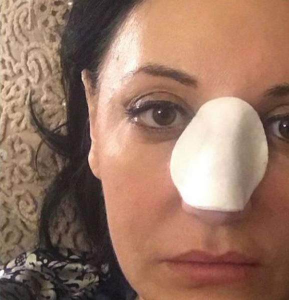 Фатима Хадуева не может разговаривать после очередной операции