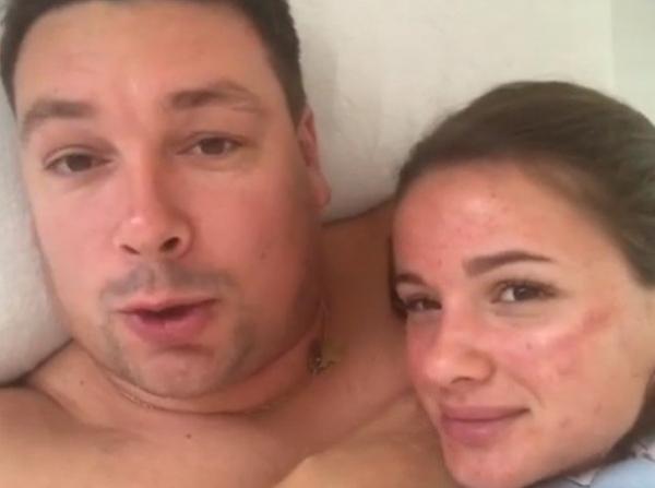 Жена Андрея Чуева ужаснула катастрофичным состоянием кожи