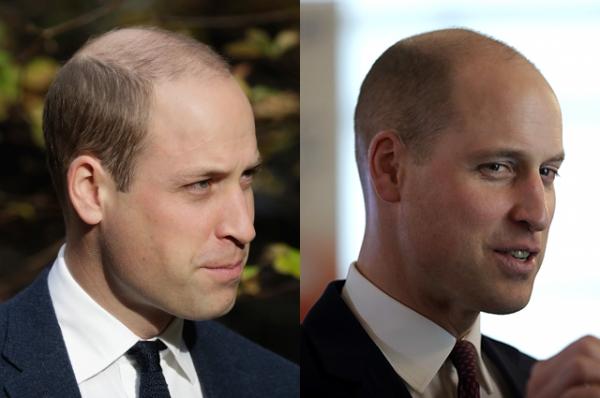 В сети обсуждают новую прическу принца Уильяма: герцог побрил голову почти налысо