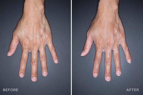 Инъекции, лазеры, пилинги: как ухаживать за руками зимой