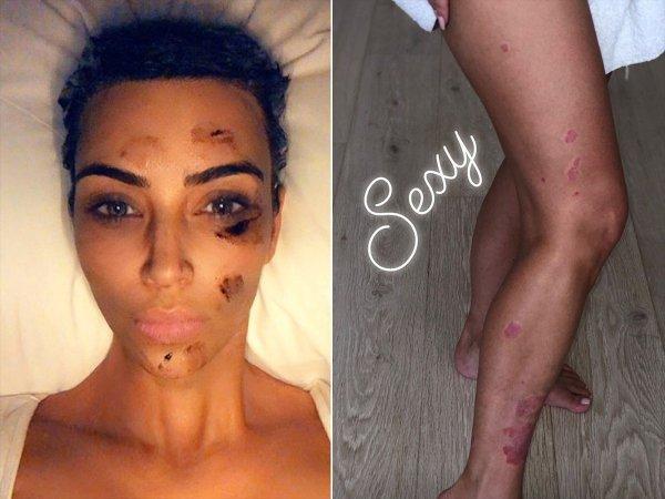 Ким Кардашьян вновь сообщила подписчикам о проблемах с кожей: почему в этом виновата Пэрис Хилтон