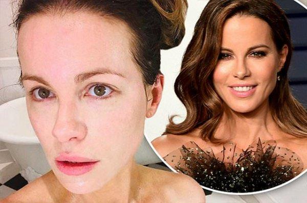 Кейт Бекинсейл опубликовала фото без макияжа и фильтров