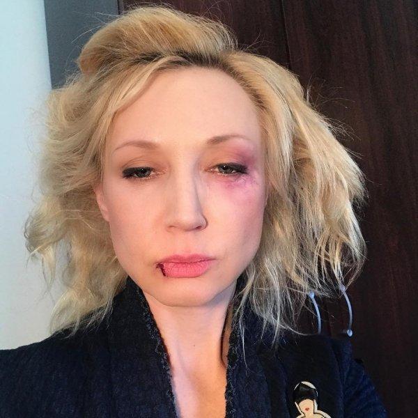 Кристина Орбакайте опубликовала селфи со следами побоев на лице