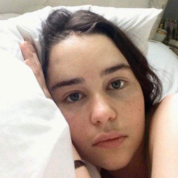 Эмилия Кларк ужаснула рассказом об операциях и инсульте и показала фото из больницы