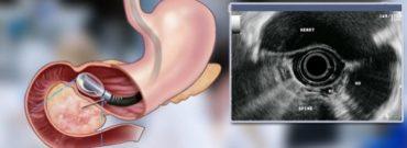 European clinic: reviews of endoscopy